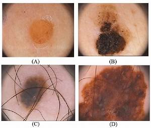 Different Types Of Dermoscopy Images For Both Type Benign