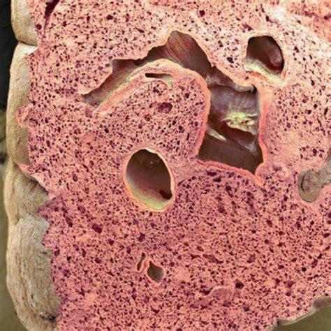 Emorroidi Interne Congeste Enfisema Cause Sintomi E Trattamento