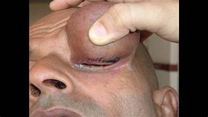 How To Remove A Sebaceous Cyst