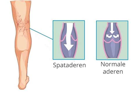 Behandeling van spataderen : scleroseren van spataderen
