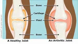 arthritis (JIA) (also known as juvenile rheumatoid arthritis ...  Juvenile Rheumatoid Arthritis Rheumatoid Arthritis