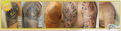 laser tattoo removal houston sugar land clinic