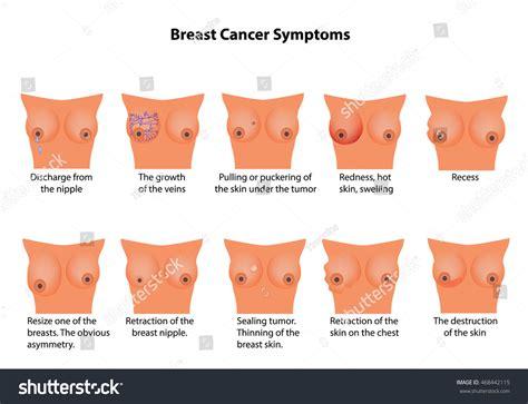 Symptoms Breast Cancer Infographics Vector Illustration