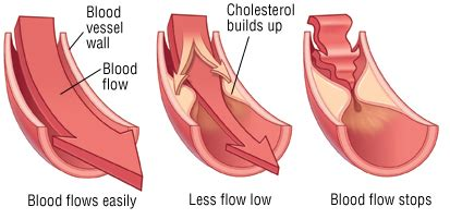 blood flow obstruction   body kauvery