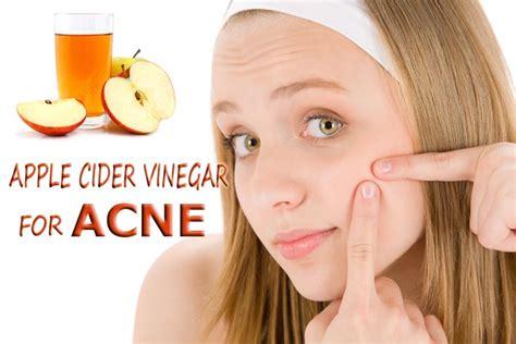 apple cider vinegar  acne pimples  methods