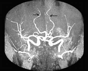 Image result for cns vasculitis