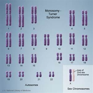 Turner Syndrome - Genetics Home Reference