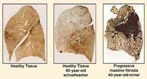 Pneumoconiosis- Interactive Health  Pneumonia Asbestos