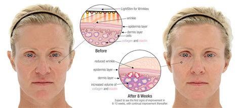led light therapy before and after lightstim reviews lightstim for wrinkles pain and acne
