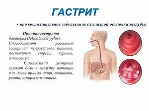 Препараты для лечение папиллом