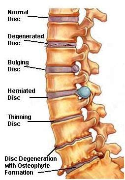 good diagram  disk problems   spine spinal