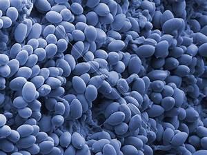 SEM of Magic Mushroom Spores | Sciencephotography.com