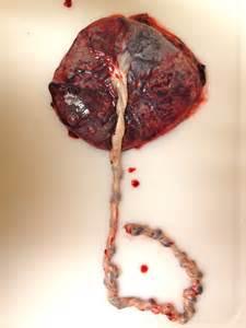 Human Placenta After Birth
