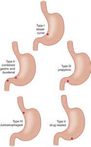 Types Gastric Ulcer Locations