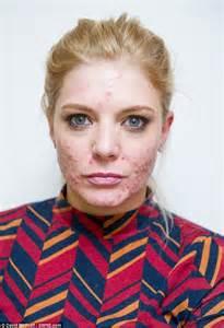 Chemical Peel Acne Scar Treatment
