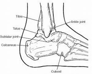 calcaneal fractures - Scottsdale Podiatrist - Dr. David ...