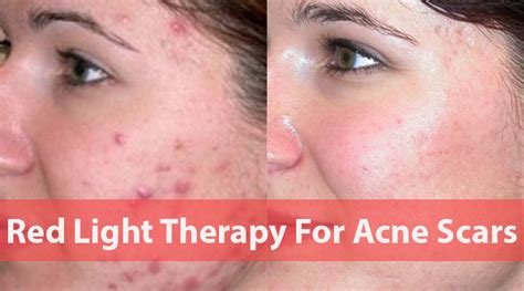 best acne light therapy arman info