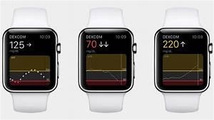 Blood Sugar Tracking Apple Watch Vs Diabetes The Glucose Monitoring Story So Far