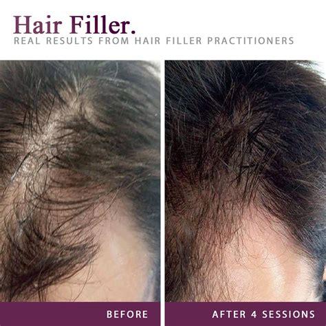 Hair Filler - Pro-Active SA