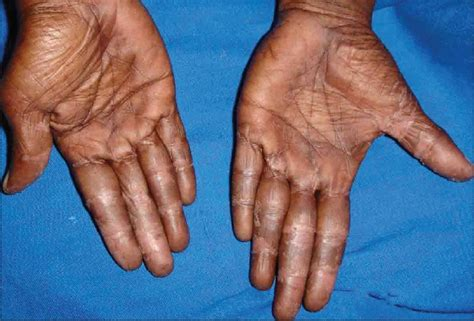 what is hand foot syndrome with xeloda does voltaren gel