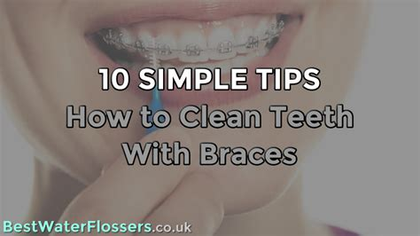 10 Simple Tips - How to Clean Teeth With Braces
