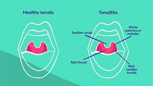What Is Tonsillitis  Your Guide To Symptoms And Treatment