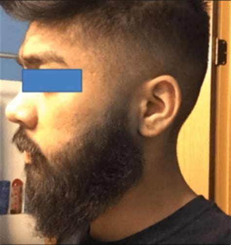 Rogaine Shedding After 1 Month by 100 Rogaine Shedding After 1 Month Rogaine Hair