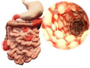 crohns disease ulcerative colitis progression