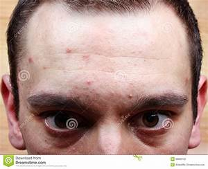 Acne pimples on the face stock photo. Image of crude ...
