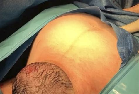 gentle c section gentle c section newborn pops out of s