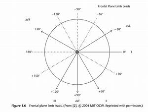 Frontal Plane Limb Leads