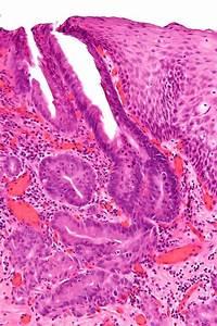 Adenocarcinoma  Esophageal Adenocarcinoma