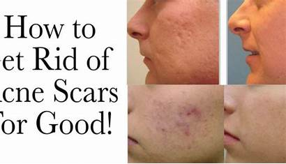 Acne Rid Scars Laser Resurfacing Tag There
