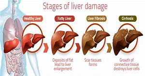 New Liver Disease Treatments in the Pipeline as Awareness ...