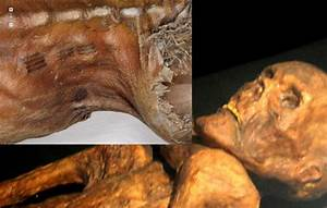 Ancient Medical Knowledge Is Written in the Skin | Ancient ...