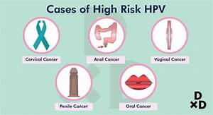 Pap Smear In Singapore  The Ultimate Guide To Detect