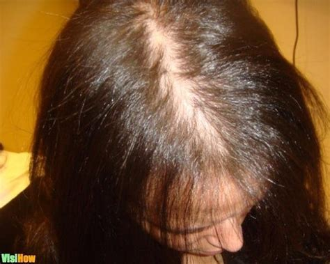 homeopathic remedies  treat hair loss due  anemia
