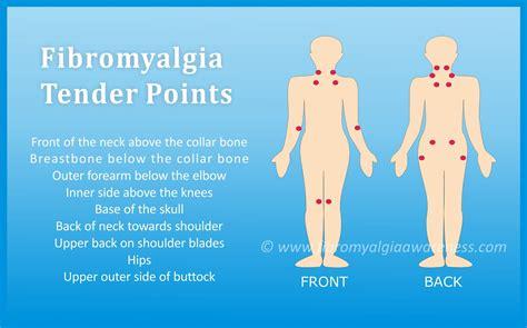 fibromyalgia awareness information tips support patient stories april