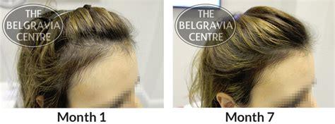 Causes Of Hair Loss And Breakage | Hair Loss
