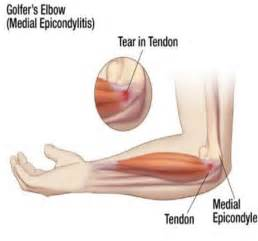 Golfer's Elbow - Bones, joints, muscles diseases - ePharmaPedia Elbow Injuries and Disorders