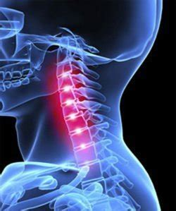 Diagnose and fix a pinched nerve in your neck - VisiHow