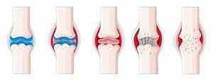 Rheumatoid Arthritis In Human Body