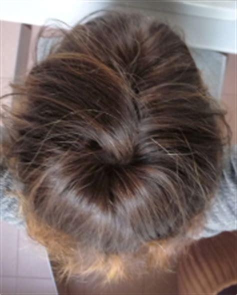 zwiebelsaft gegen graue haare graue haare geburt an