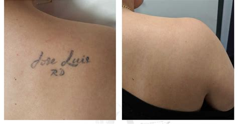 montreals  rated laser tattoo removal clinic
