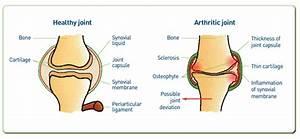 Arthritis  U2013 Cpvg Information Sheets