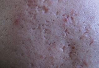 ice pick scars treatment apax medical aesthetics clinic