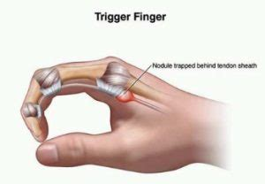 Trigger Finger Diagram by Other Surgeries Dr Daniel Durand Montreal Surgeon