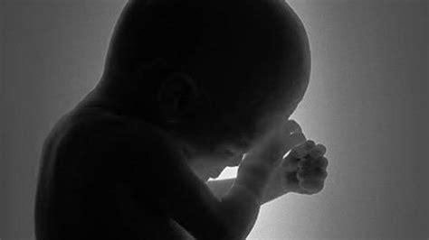 hamil dua bulan gadis bawah umur lakukan aborsi diduga libatkan oknum anggota dprd tribun batam