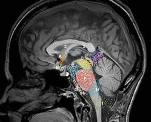 Sagittal Midline Of The Brain  Normal Anatomy