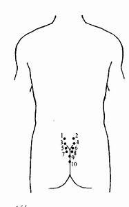 Геморрой и гирудотерапия